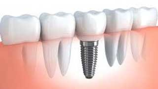 http://mairsfamilydentistry.com/wp-content/uploads/2015/12/Dental-Implants-Arvada-CO-320x180.jpg