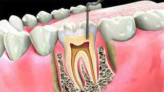 http://mairsfamilydentistry.com/wp-content/uploads/2015/12/Endodontic-Treatment-Arvada-CO-320x180.jpg