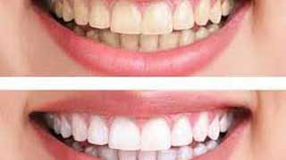 http://mairsfamilydentistry.com/wp-content/uploads/2015/12/Teeth-Whitening-Arvada-CO-1-320x180.jpg